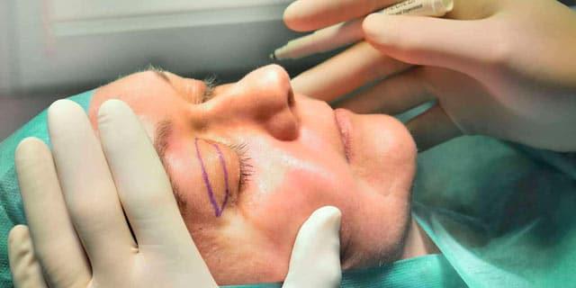 Dr. Dippe - Plastische Chirurgie Frankfurt - Oberlidstraffung OP