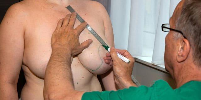 OP Vorbereitung Brustverkleinerung Dr. Dippe